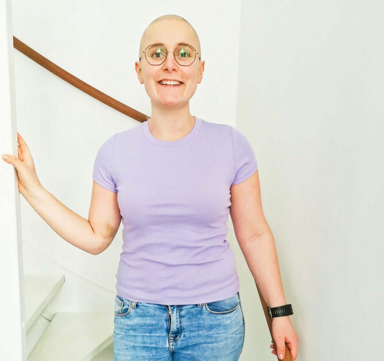 Het belang van hoofdverzorging als je je haar verliest door kanker en chemokuren